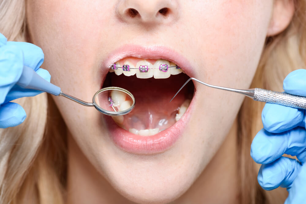 Can you wear braces with baby teeth?