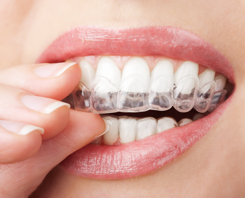 Does Teeth Whitening Work on Fillings?