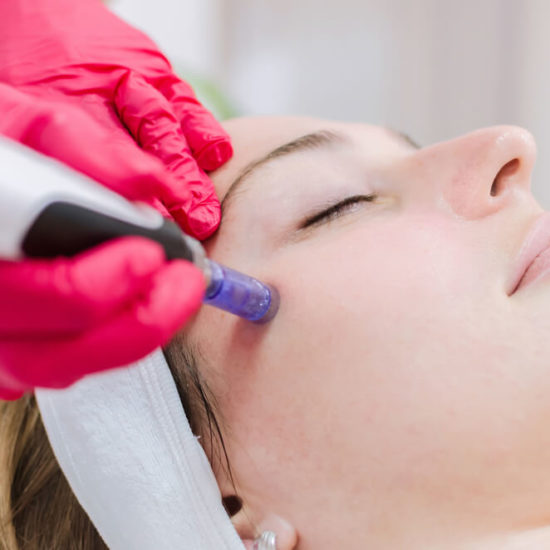 What You Need to Know About Microneedling